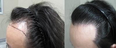 髮際線1-3.jpg.jpg