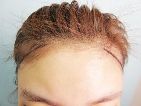 植髮推薦1-3.jpg