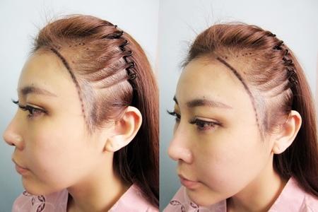 植髮推薦1-4.jpg