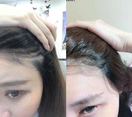 植髮推薦1-5.jpg