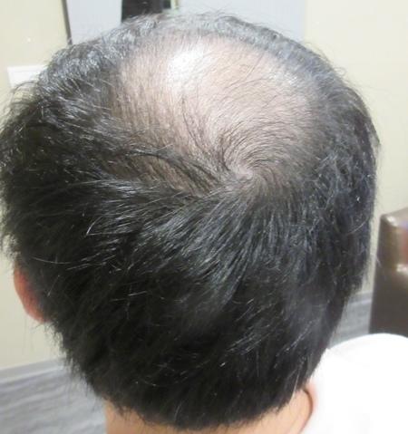 植髮推薦2-2.jpg