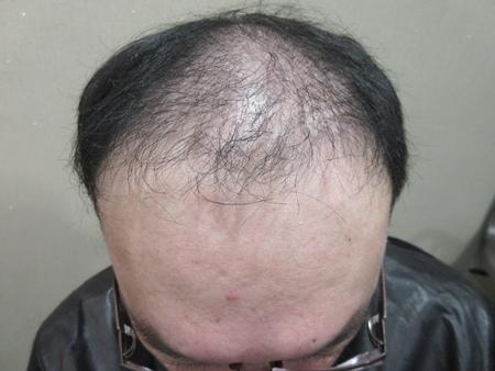 植髮推薦2-3.jpg
