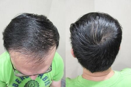 植髮推薦2-5.jpg