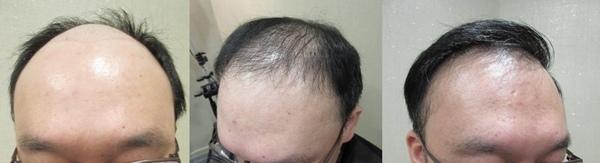 植髮推薦2-6.jpg