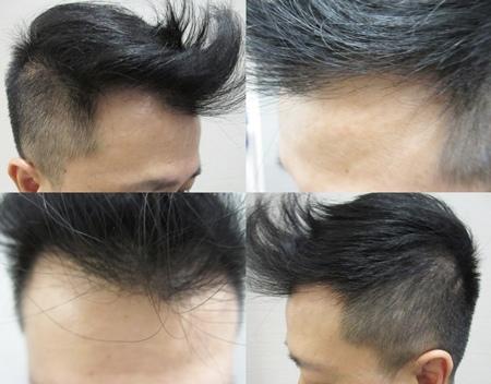 植髮推薦2-1.jpg
