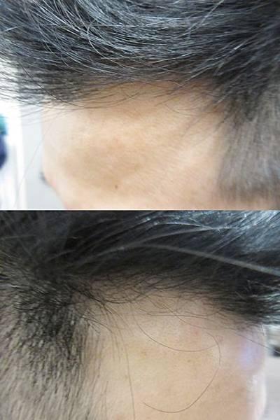 植髮推薦2-4.jpg