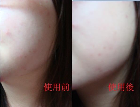 廣源良-戰痘3.jpg