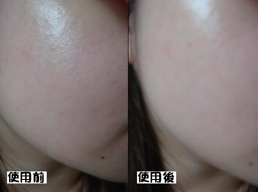 fonperi 緊顏舒敏果凍面膜4.JPG