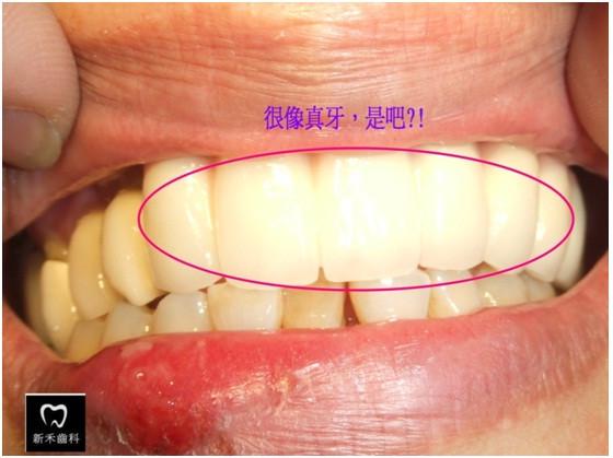 新禾牙醫,植牙,快速植牙,無痛植牙,專業植牙,台北植牙,微創植牙