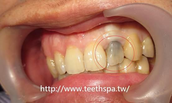 """植牙,台北植牙,人工植牙,專業植牙,快速植牙,無痛植牙,微創植牙"""""""""""