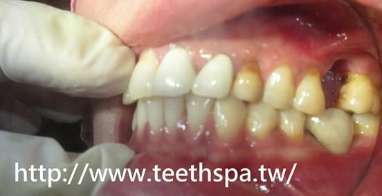 植牙,台北植牙,人工植牙,專業植牙,快速植牙,無痛植牙,微創植牙