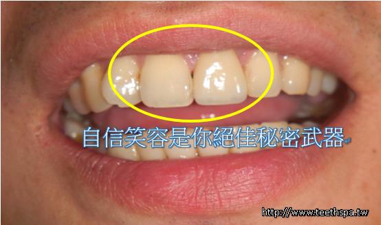 新禾牙醫全瓷牙3.PNG
