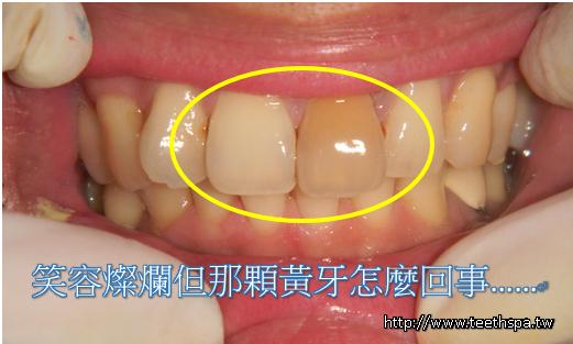 新禾牙醫全瓷牙1.PNG