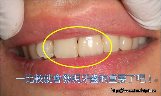 新禾牙醫全瓷牙2.PNG