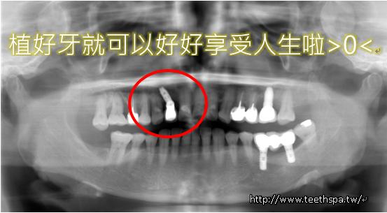 新禾牙醫植牙4.PNG,新禾牙醫,植牙,台北植牙,無痛植牙,快速植牙,專業植牙