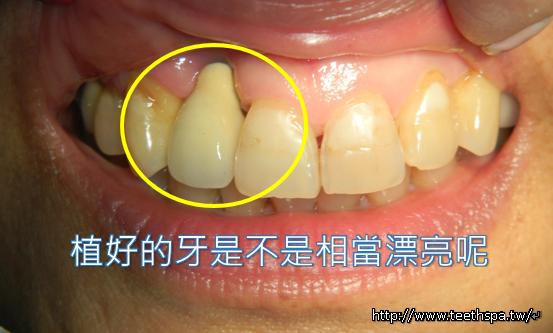 新禾牙醫植牙3.PNG,新禾牙醫,植牙,台北植牙,無痛植牙,快速植牙,專業植牙