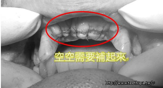 植牙新禾牙醫1.PNG,植牙,快速植牙,專業植牙,無痛植牙,台北植牙,人工植牙