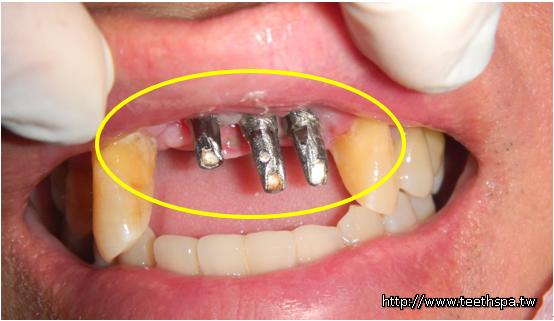 植牙新禾牙醫2.PNG,植牙,快速植牙,專業植牙,無痛植牙,台北植牙,人工植牙