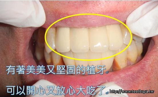 植牙新禾牙醫3.PNG,植牙,快速植牙,專業植牙,無痛植牙,台北植牙,人工植牙