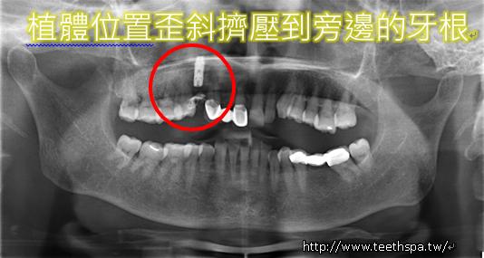 植牙新禾牙醫2.PNG,植牙,台北植牙,專業植牙,無痛植牙,快速植牙,人工植牙