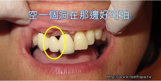 植牙新禾牙醫1.PNG,植牙,台北植牙,專業植牙,無痛植牙,快速植牙,人工植牙