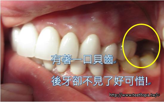 快速植牙新禾牙醫1.PNG,植牙,台北植牙,人工植牙,專業植牙,快速植牙,無痛植牙,微創植牙