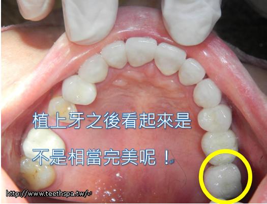 快速植牙新禾牙醫4.PNG,植牙,台北植牙,人工植牙,專業植牙,快速植牙,無痛植牙,微創植牙