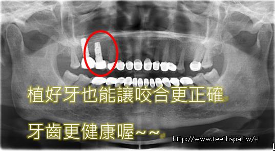 快速植牙新禾牙醫5.PNG,植牙,台北植牙,人工植牙,專業植牙,快速植牙,無痛植牙,微創植牙