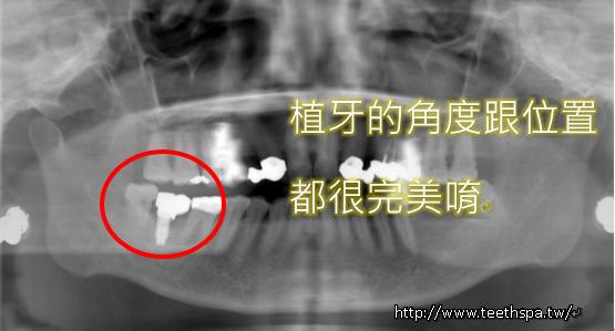 快速植牙新禾牙醫5.PNG