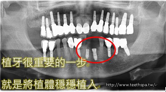 新禾牙醫舒眠植牙2.PNG,植牙,台北植牙,人工植牙,專業植牙,快速植牙,無痛植牙,微創植牙