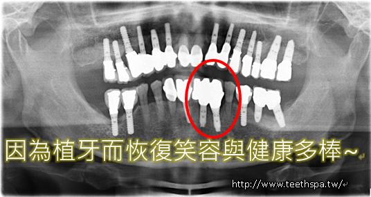新禾牙醫舒眠植牙4.PNG,植牙,台北植牙,人工植牙,專業植牙,快速植牙,無痛植牙,微創植牙