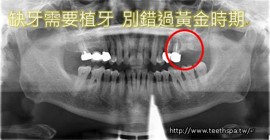 植牙植牙新禾牙醫2.PNG