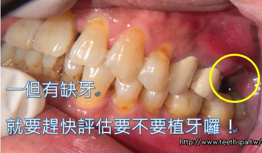 植牙植牙新禾牙醫1.PNG