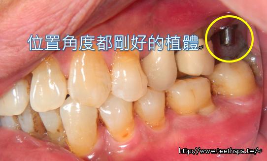 植牙植牙新禾牙醫3.PNG