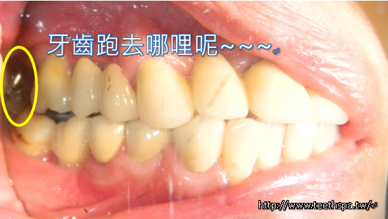舒眠植牙新禾牙醫.PNG