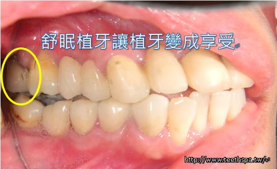 舒眠植牙新禾牙醫5.PNG