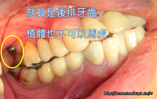 舒眠植牙新禾牙醫3.PNG