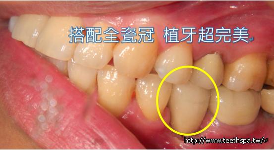 微創植牙新禾牙醫5.PNG
