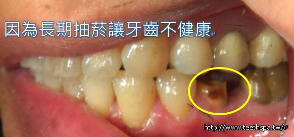 微創植牙新禾牙醫1.PNG