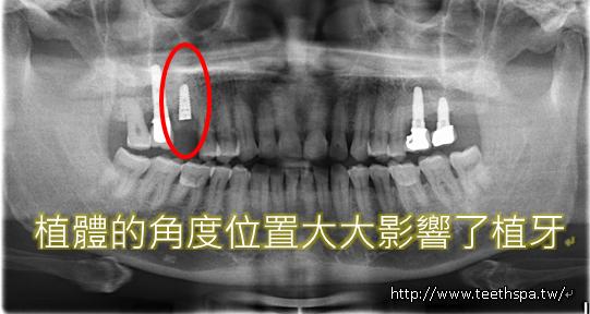 微創植牙新禾牙醫2.PNG
