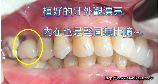 微創植牙新禾牙醫3.PNG