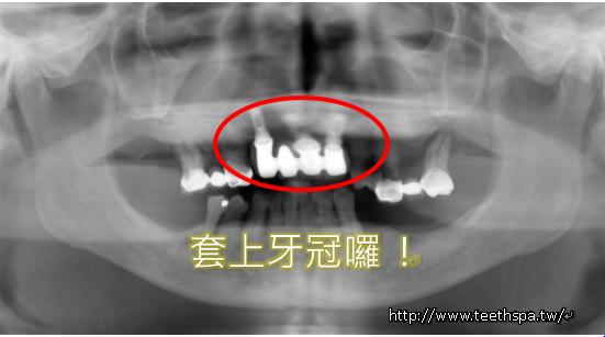 怕痛微創植牙新禾牙醫4.PNG