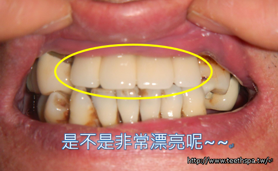 怕痛微創植牙新禾牙醫5.PNG