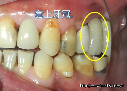 舒眠植牙微創植牙牙醫診所5.PNG