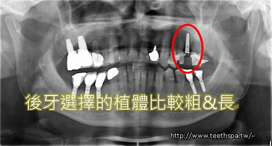 舒眠植牙微創植牙牙醫診所4.PNG