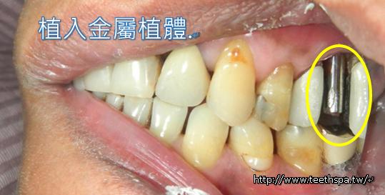 舒眠植牙微創植牙牙醫診所3.PNG