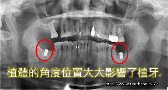 植牙植牙真實案例5.PNG