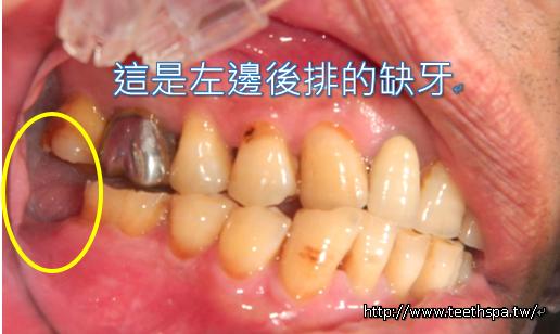 植牙植牙真實案例3.PNG