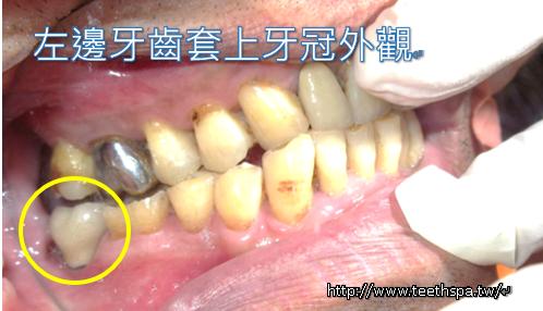 植牙植牙真實案例8.PNG