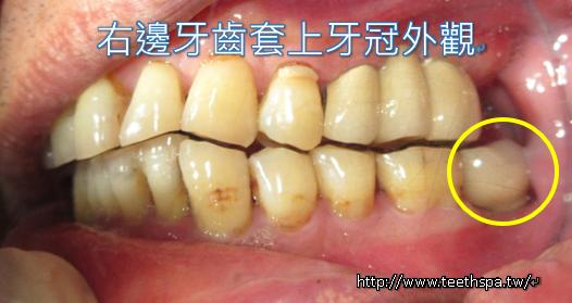 植牙植牙真實案例7.PNG